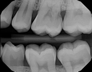 xrays of my teeth 1