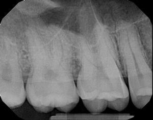 xrays of my teeth 3