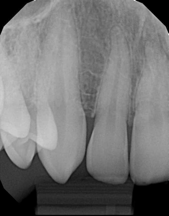 xrays of my teeth 4