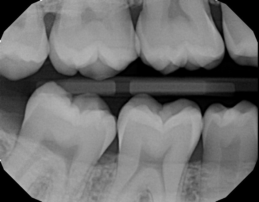 xrays of my teeth 5