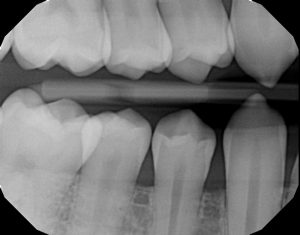 xrays of my teeth 6