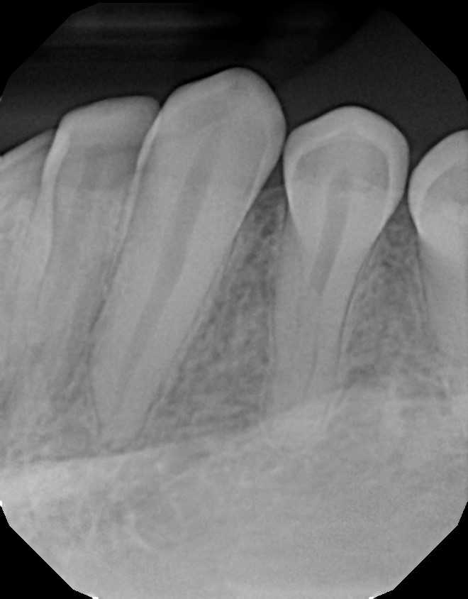 xrays of my teeth 12