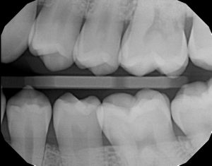 xrays of my teeth 14