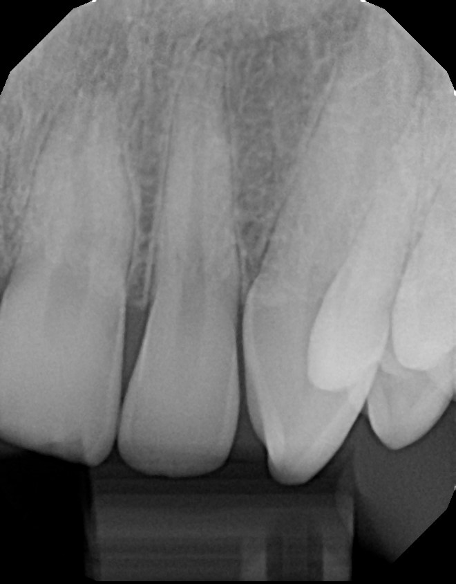 xrays of my teeth 15