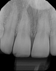 xrays of my teeth 16