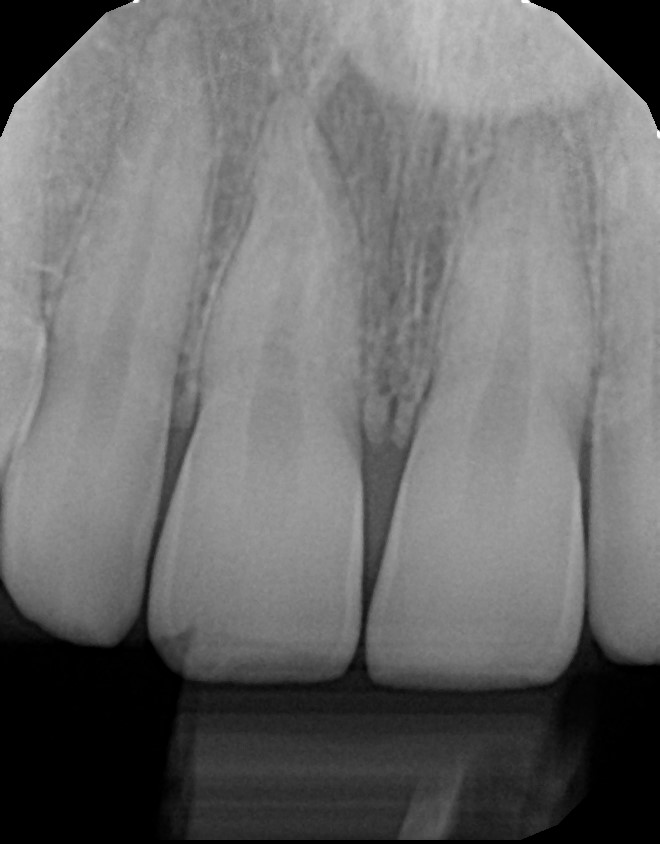 xrays of my teeth 16