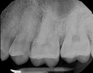 xrays of my teeth 18