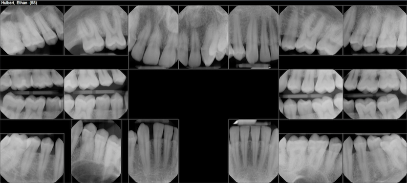 july 2018 teeth x-rays