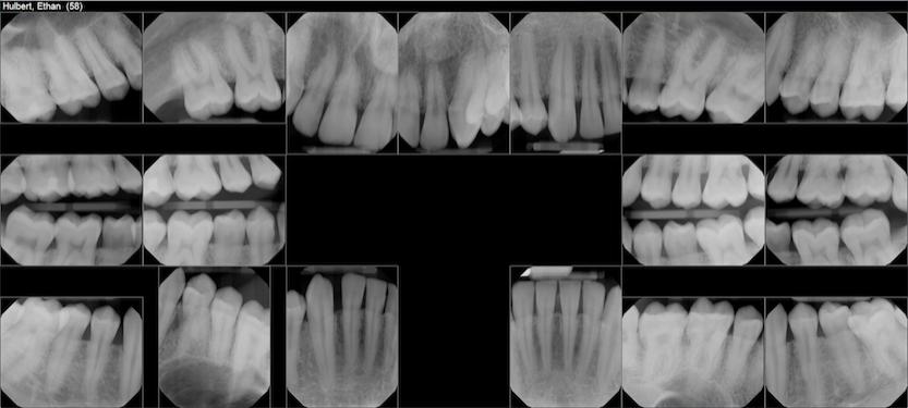 july 2018 teeth x-rays