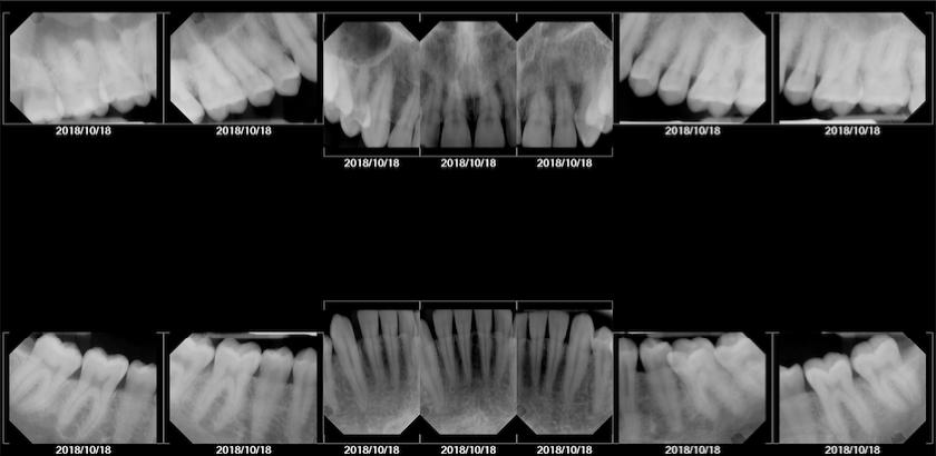 ethan hulbert professional bone xray model dental teeth